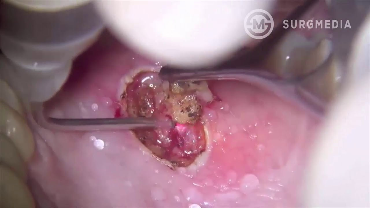 removal of papilloma)