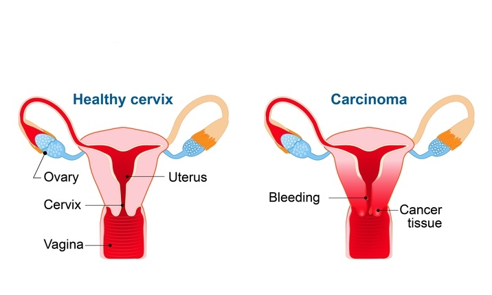 are hpv and ovarian cancer related)