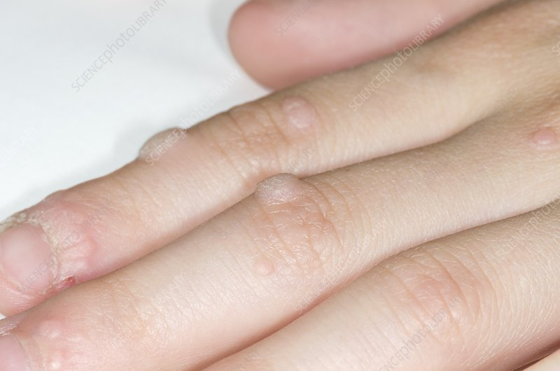 papilloma on finger