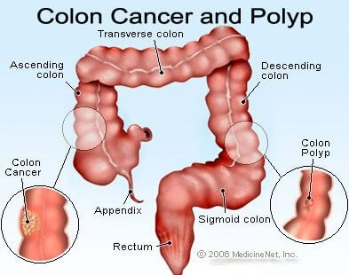 colorectal cancer caused by hpv