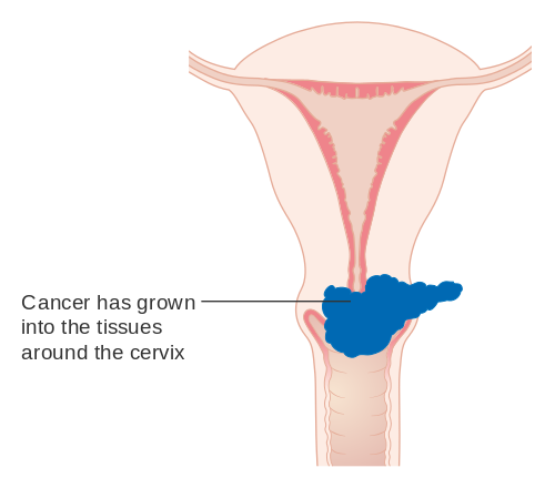 hpv virus ovarian cancer