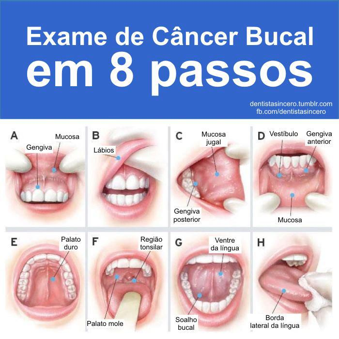cancer bucal incidencia)