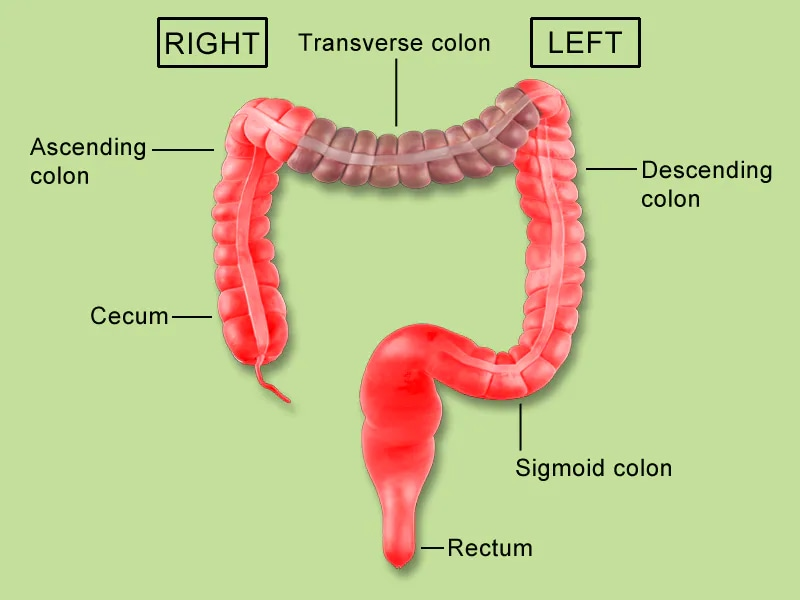 Cancer colon transverse