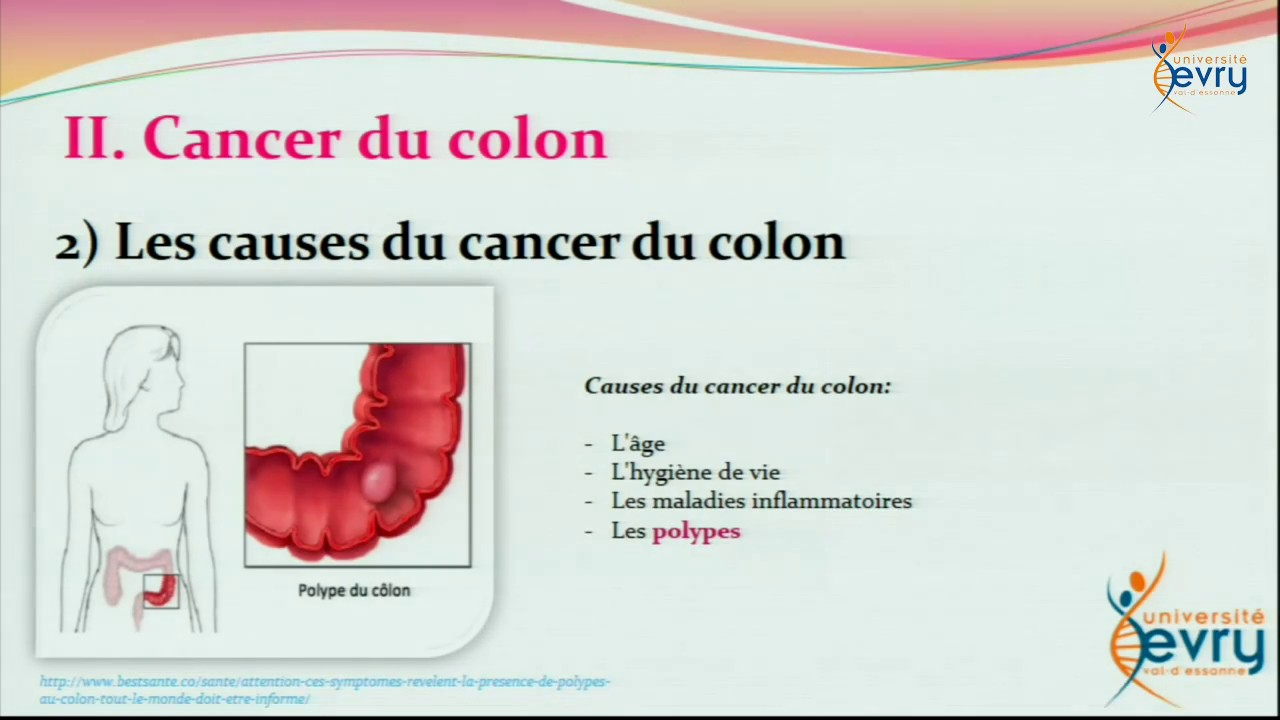 cancer colorectal viande