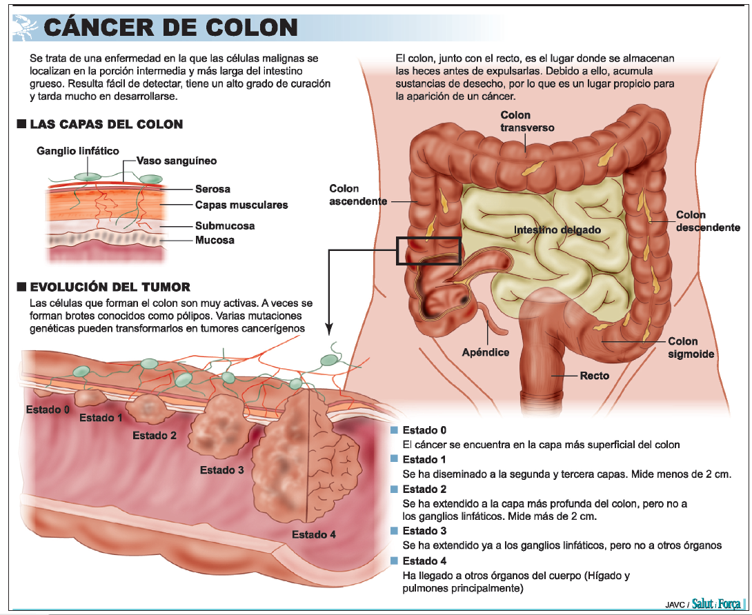 cancer de colon tratamiento