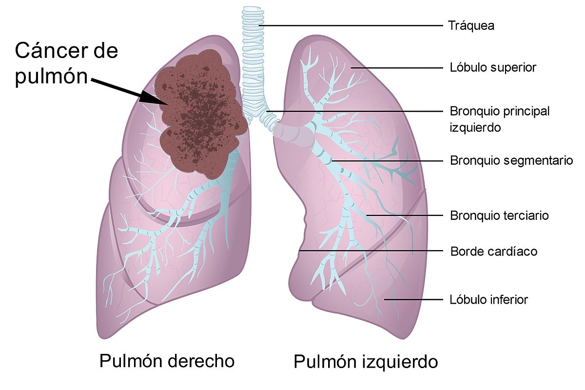 cancer de colon y ganglios afectados)