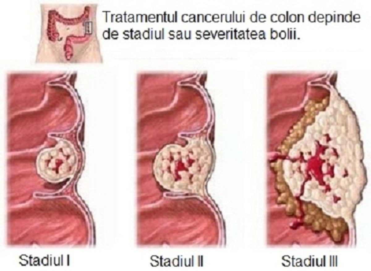 cancerul de colon la copii