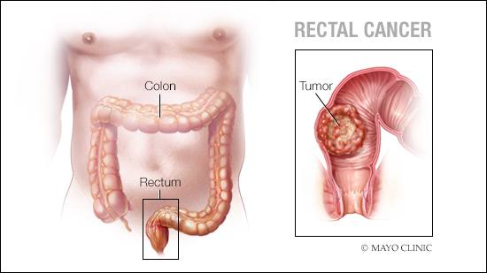 colorectal cancer caused by hpv)