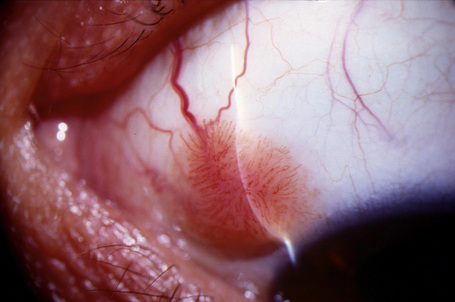 squamous papilloma of conjunctiva)