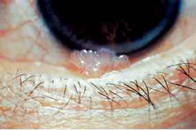 conjunctival papilloma path)
