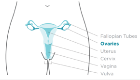 ovarian cancer definition)