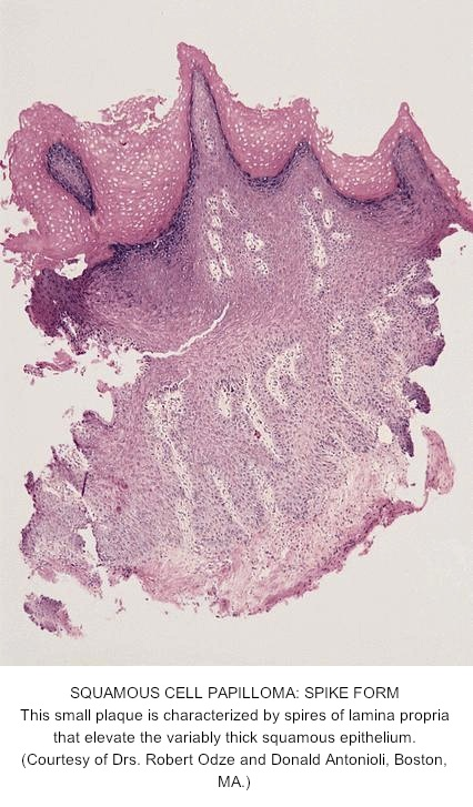 squamous papilloma of the esophagus)