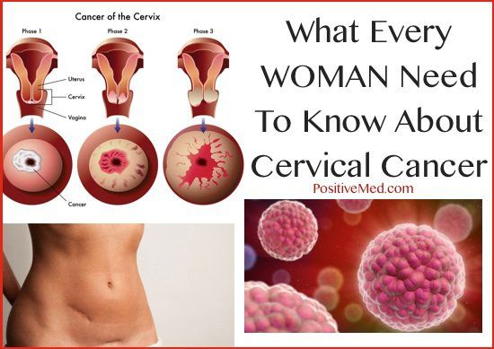 Natural cure hpv cervical cancer Papilloma virus contagios