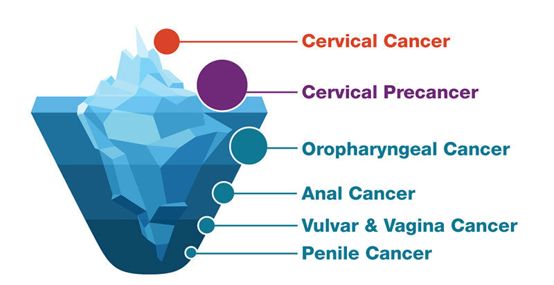 can hpv cause cancer more than once)