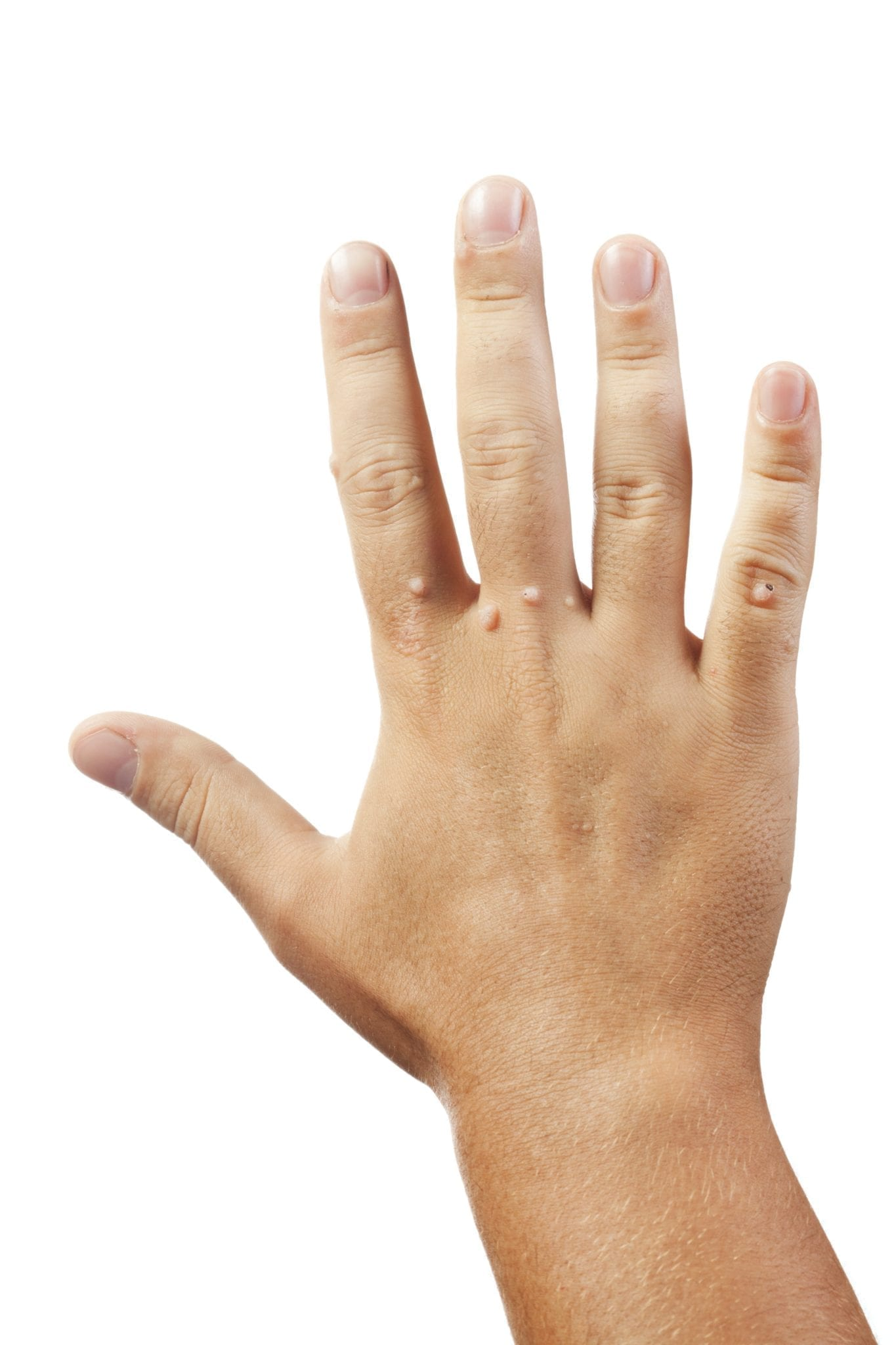 warts on hands and wrist)