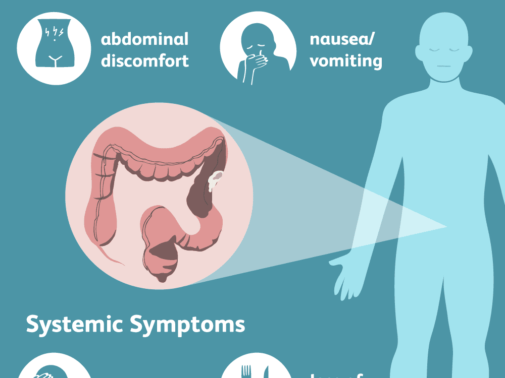 Colon cancer abdominal bloating, Account Options