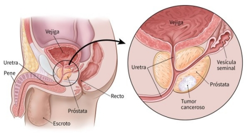 Cancer prostata y huesos.