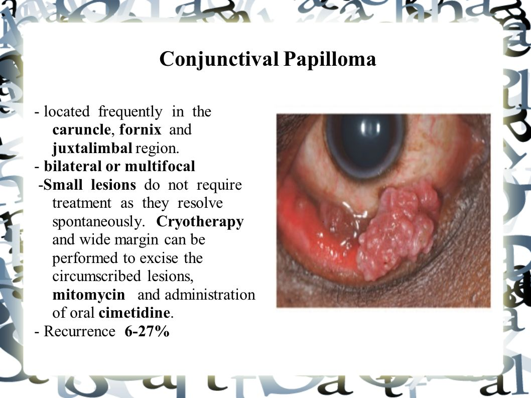 conjunctival papilloma definition)