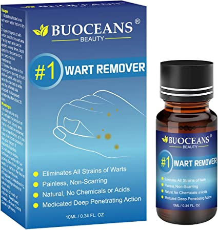 Foot wart medical treatment -