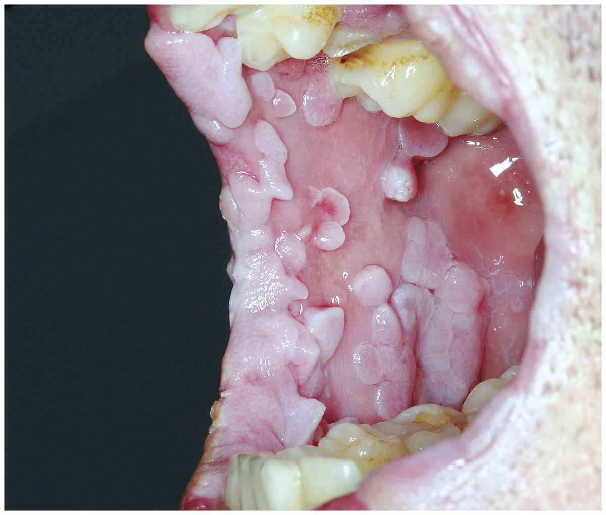 hpv mouth throat