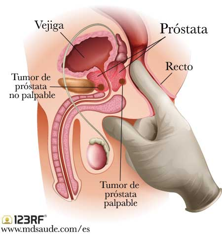 Cancer prostata sintomas metastasis