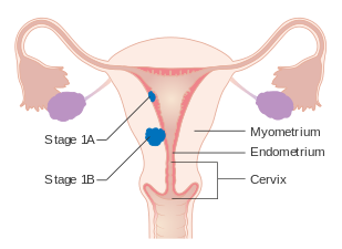 endometrial cancer before menopause)
