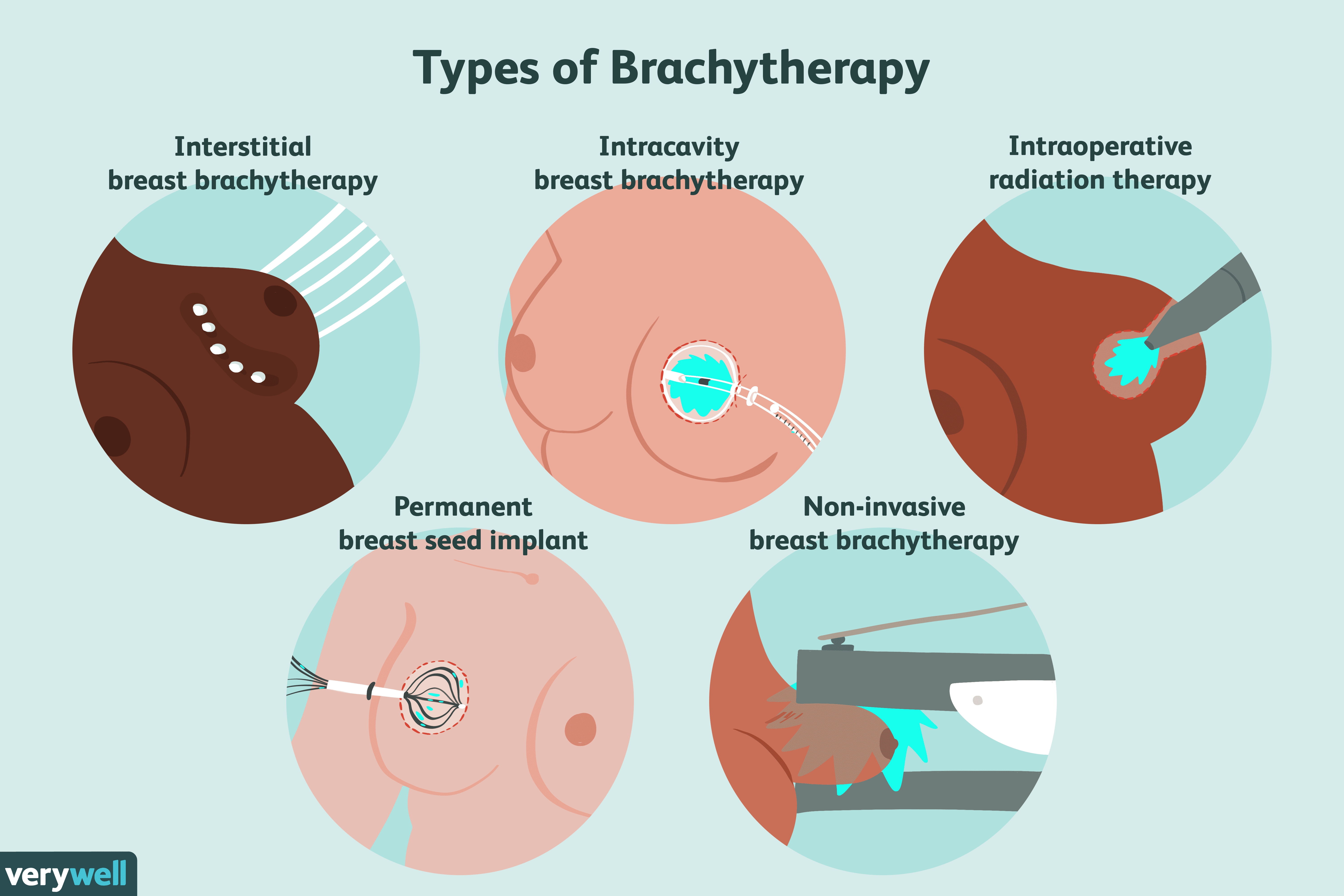 endometrial cancer brachytherapy side effects