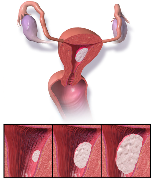 endometrial cancer in premenopausal)