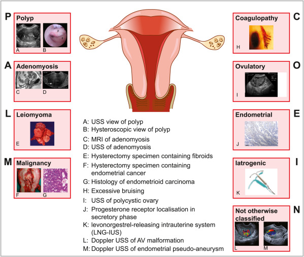 endometrial cancer or adenomyosis)