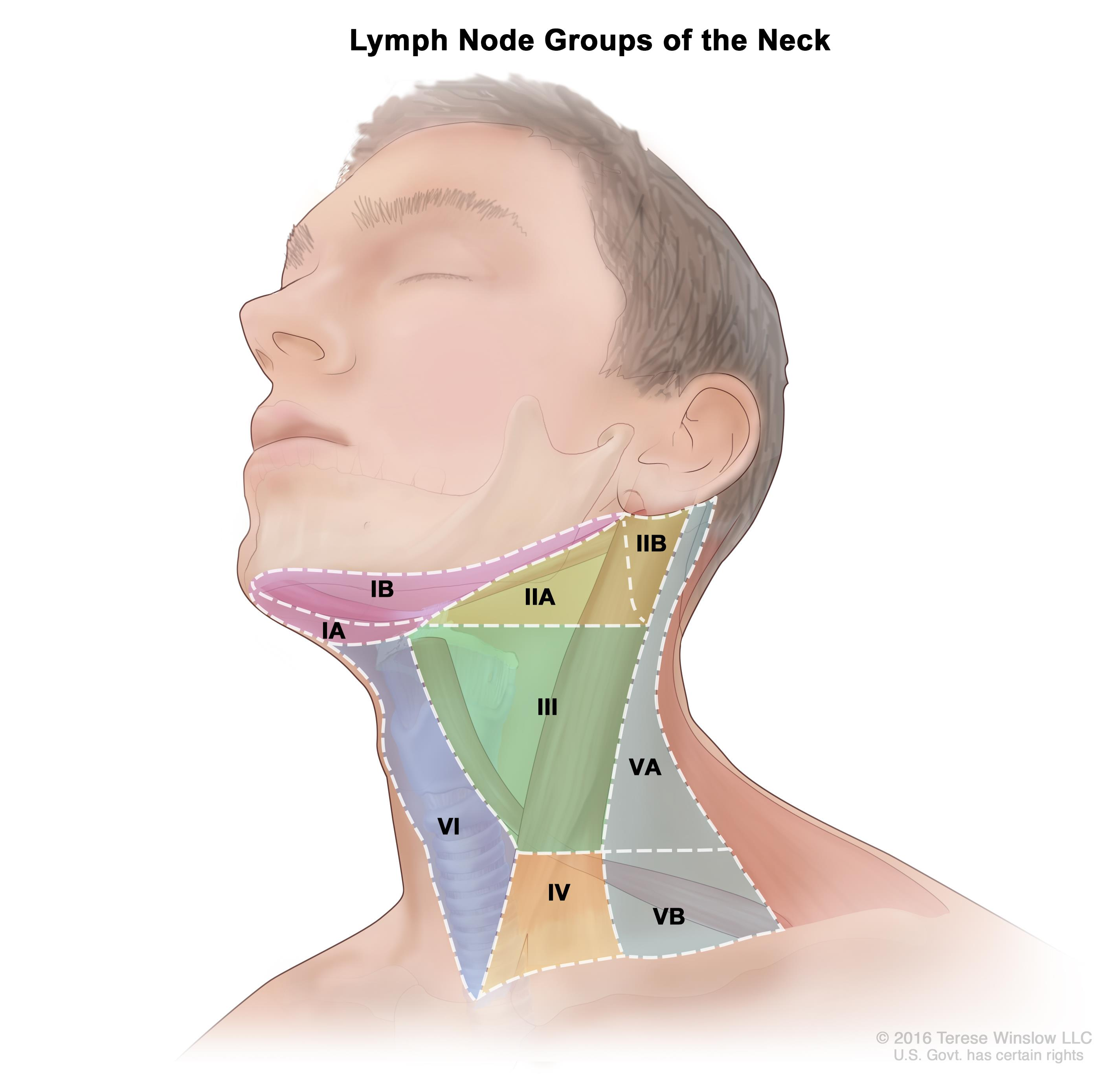 Head and neck cancer with hpv