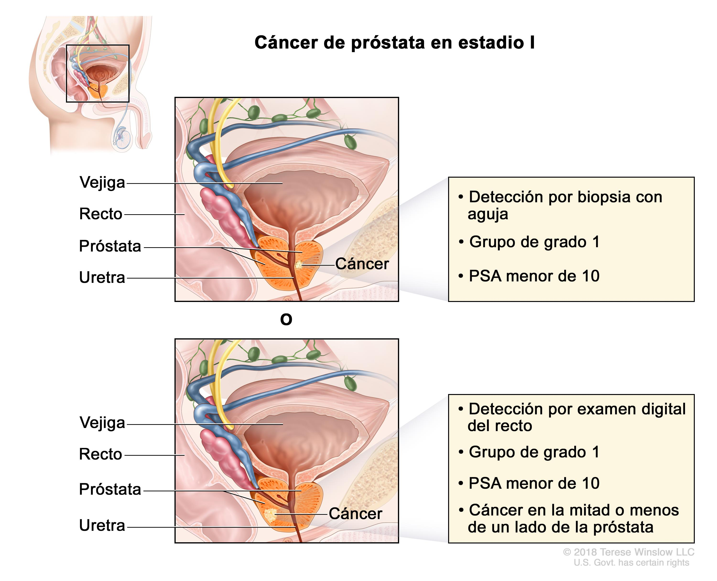 cancer de prostata diagnostico y tratamiento