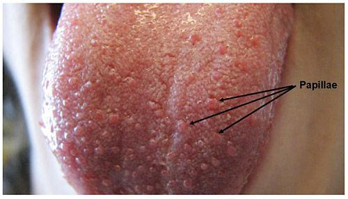 tongue papillae inflammation treatment)