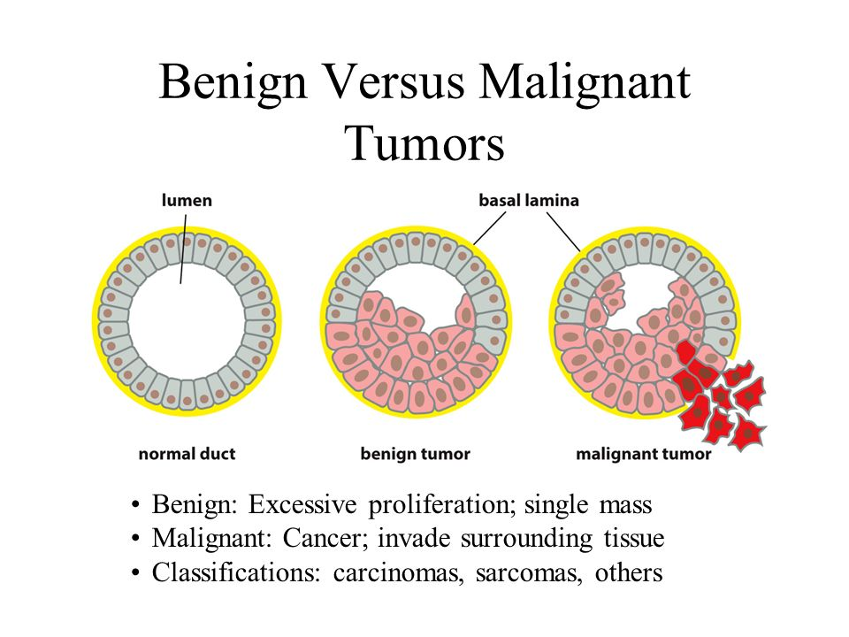 benign cancer and malignant tumor)