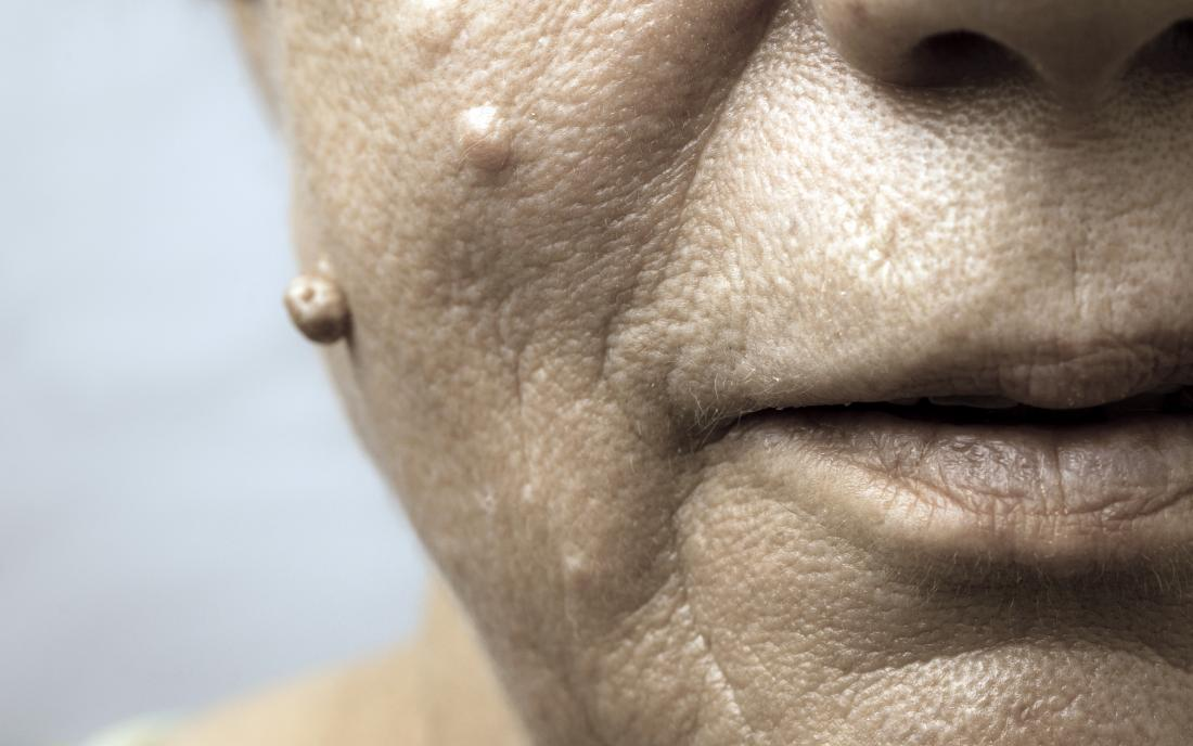hpv symptoms on face