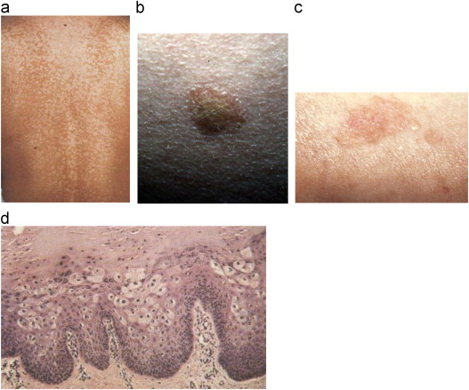 hpv and skin infection