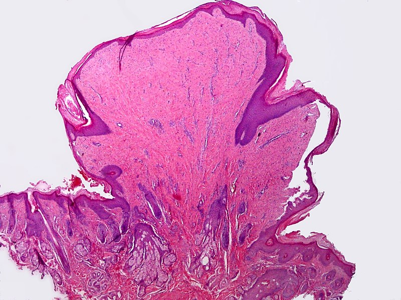 papilloma of skin histology