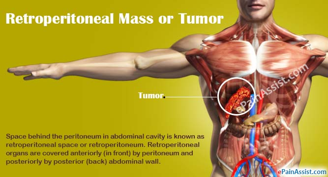 Cancer muscle abdominal Traducere