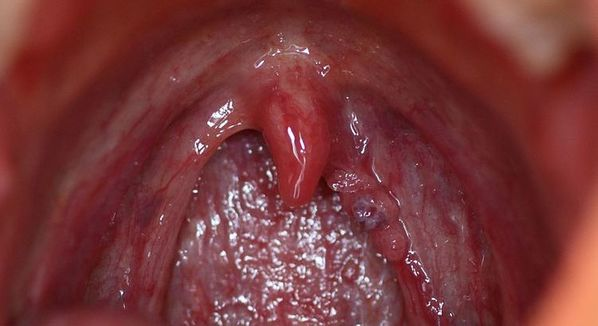 cancer hpv garganta