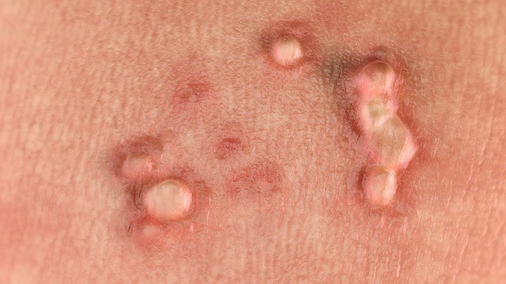 What are the types of hpv that cause genital warts