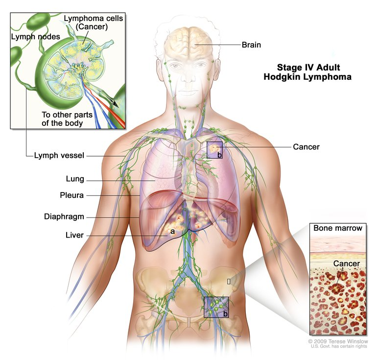 Cancer after hodgkins disease