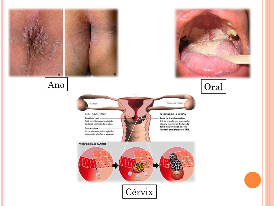 Hpv en el ano sintomas, Hpv light therapy