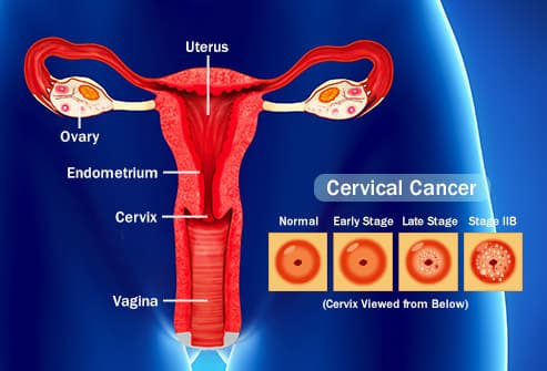 hpv cancer and pregnancy