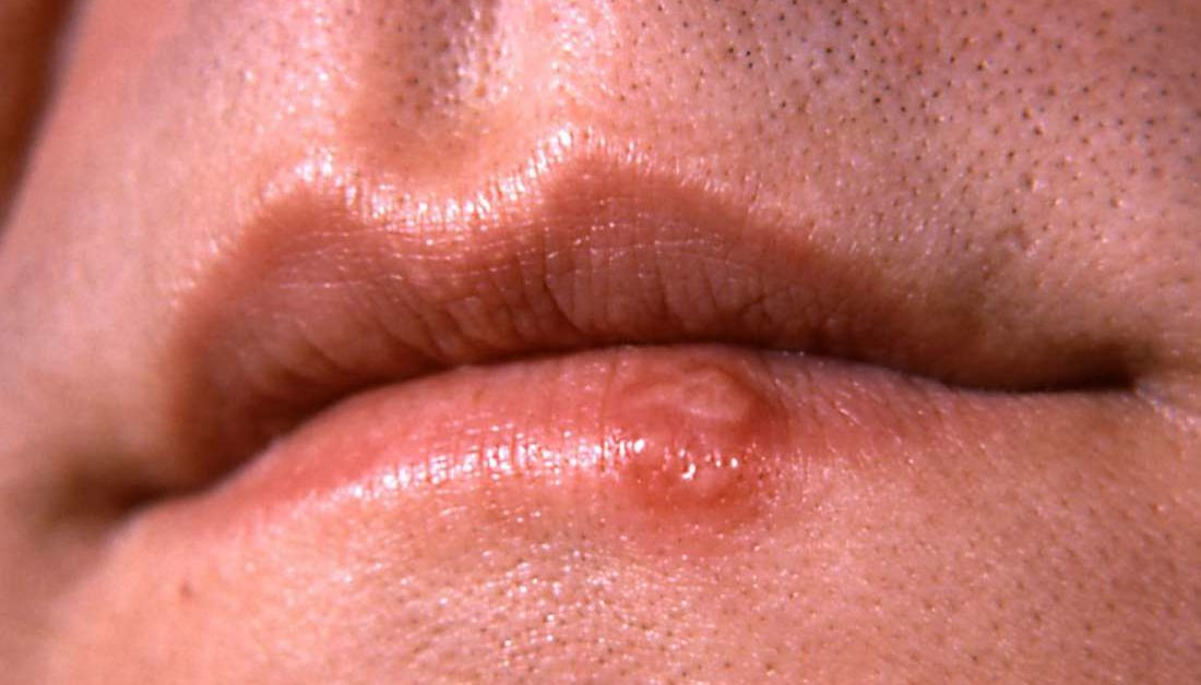hpv on lip cure)