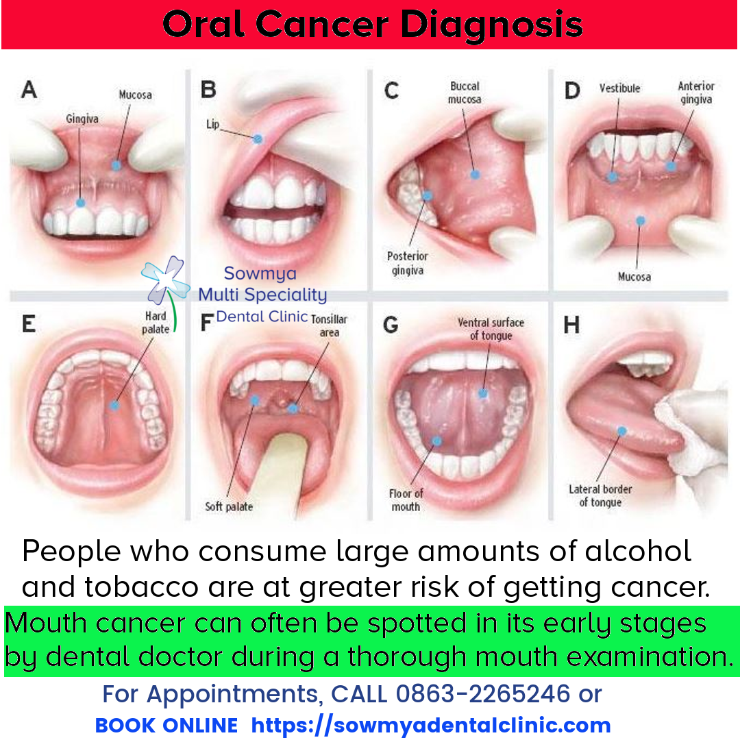 hpv throat cancer diagnosis)