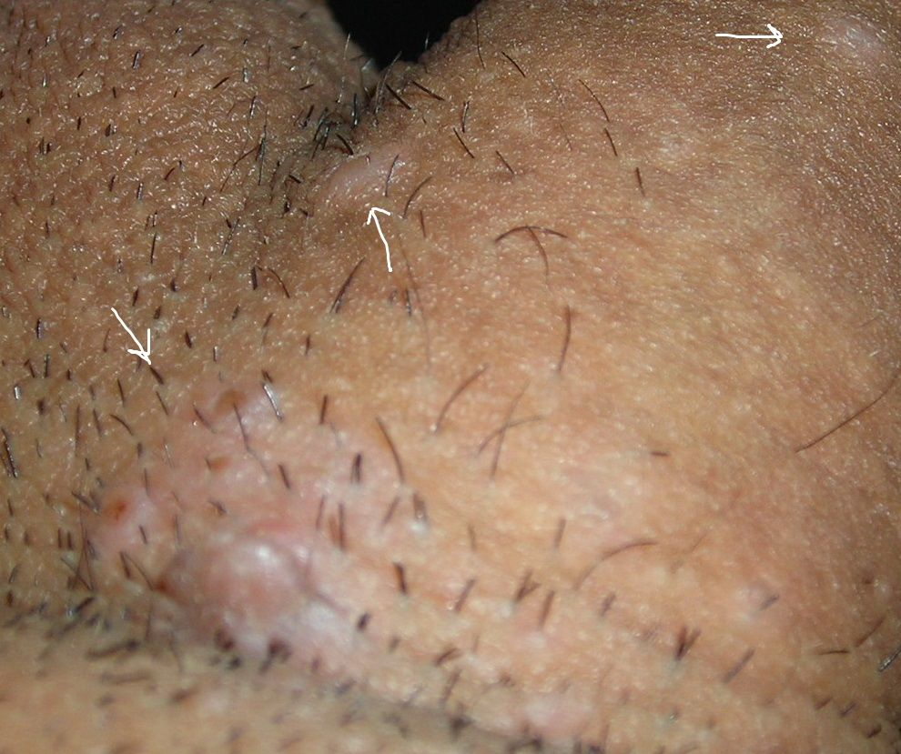 tratamiento de oxiuros ninos wart on foot burning sensation