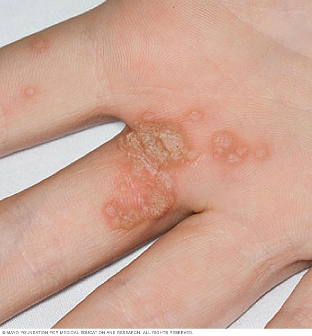 Wart virus on fingers