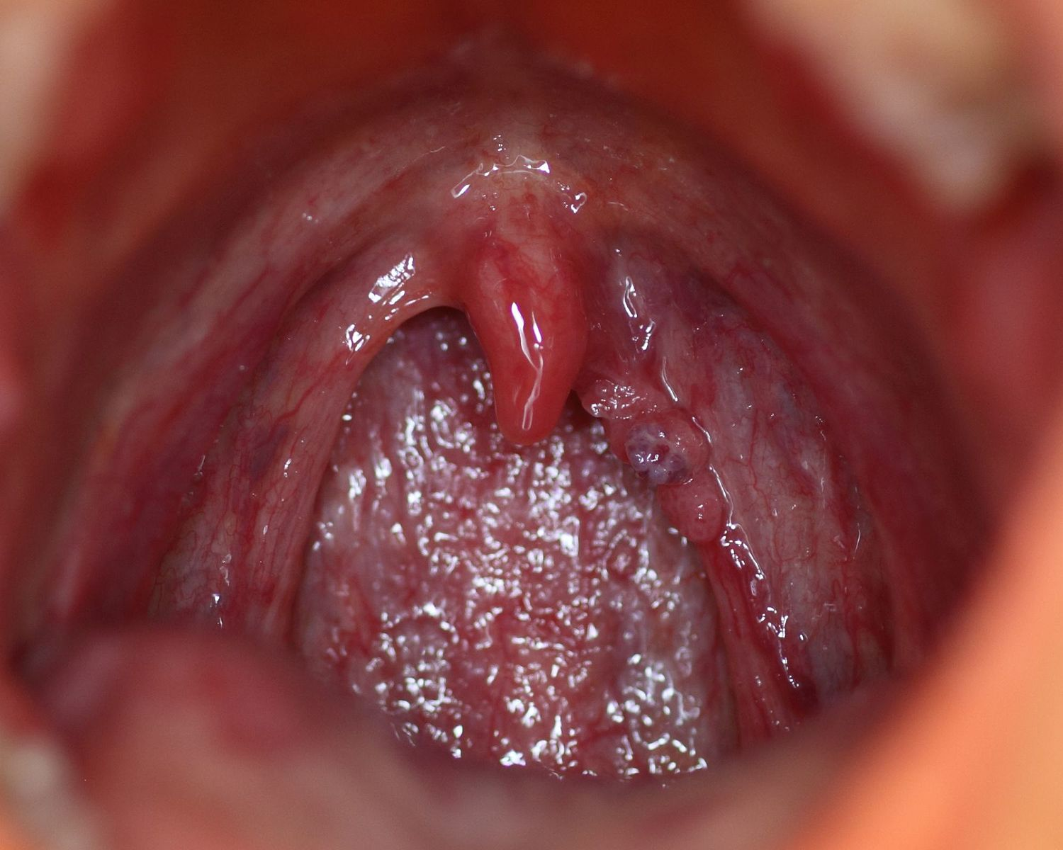 human papillomavirus infection mouth)