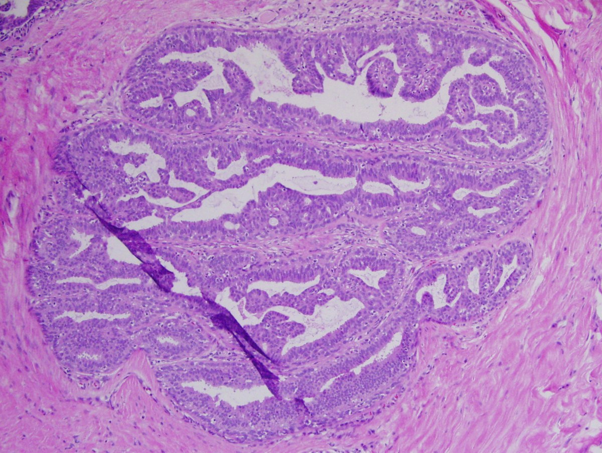 intraductal papilloma hpv