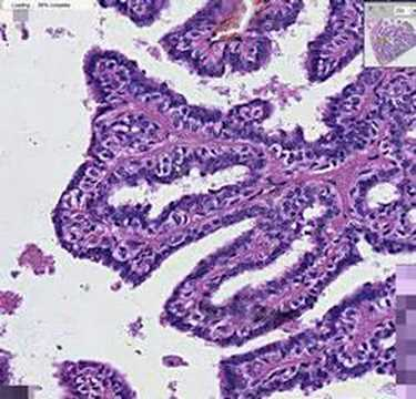 intraductal papilloma webpathology