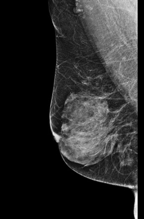 Intraductal papilloma and breast cancer - eng2ro.ro